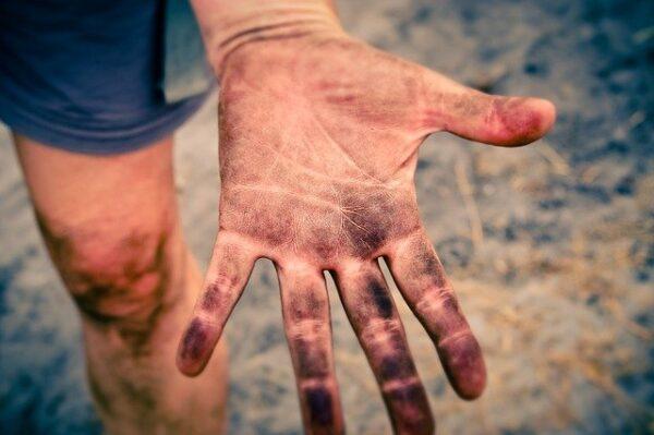 汚れた手のひら